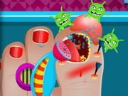 Play Broken Nail Doctor Care Game